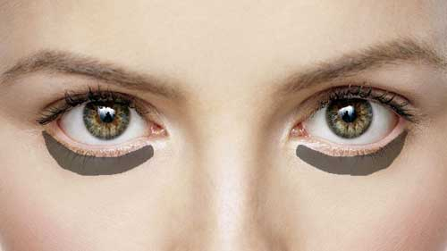 how to get rid of red circles under eyes