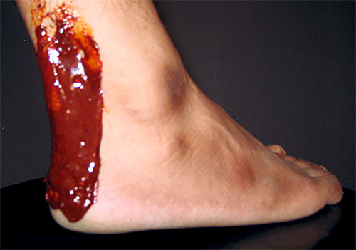 achilles-tendon-home-remedies.jpg (500×351)