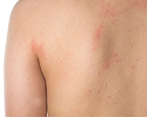 Eczema Treatment - Natural Home Remedies